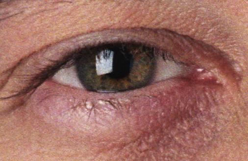 Sean O'Keefe eye